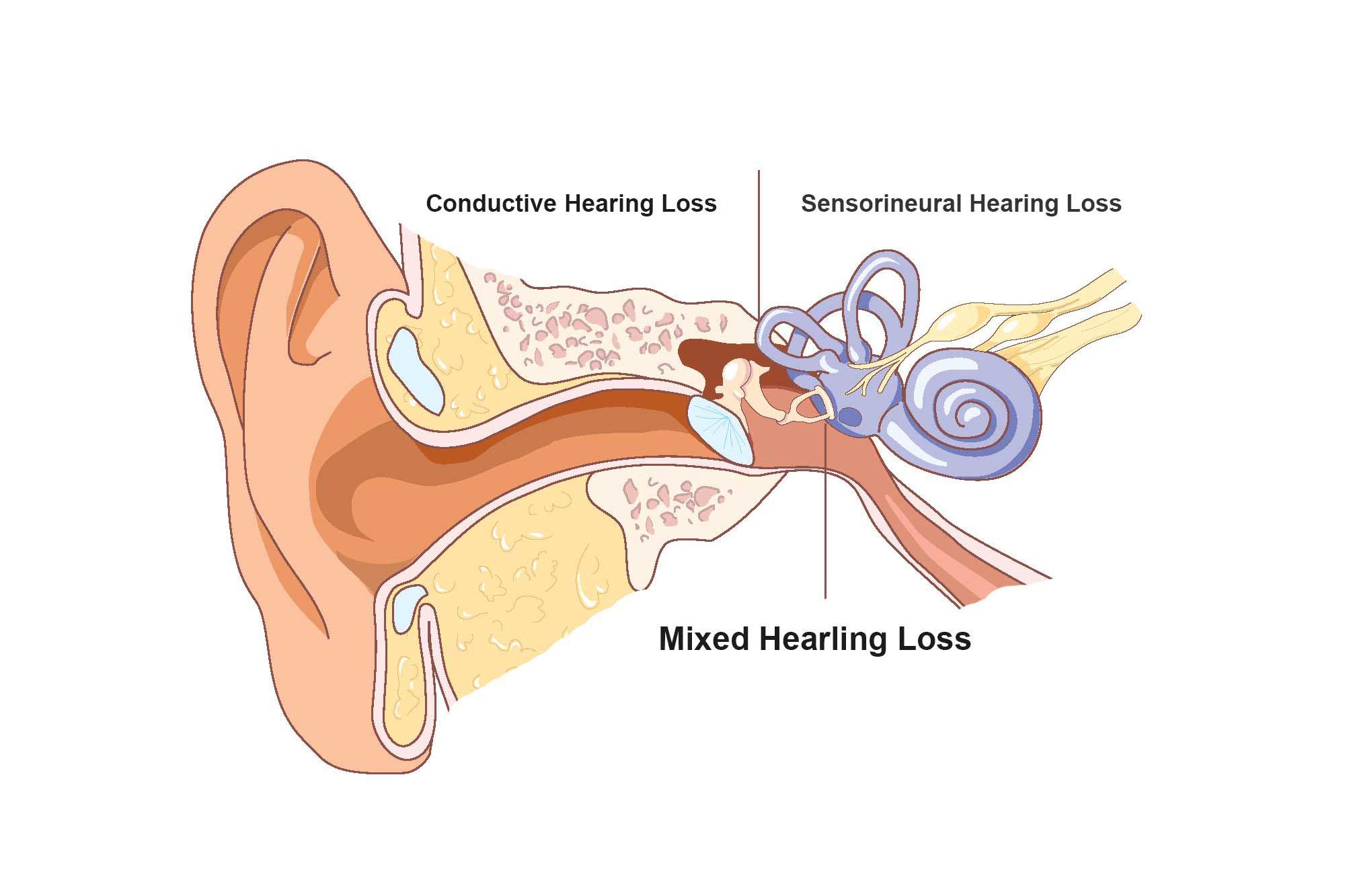 Hearing aid centre near me
